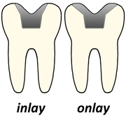 INLAYS-AND-ONLAYS