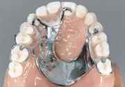 Metal-dentures