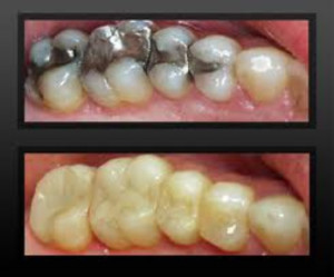 Toothe-coloured-fillings