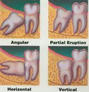 impacted third molars